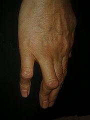 boutonnière deformities