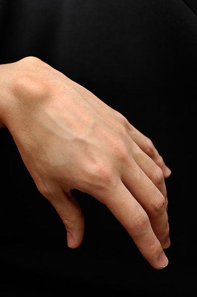 Ganglion Cyst Treatment