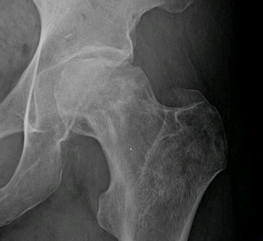 Avascular Necrosis Of Femoral Head