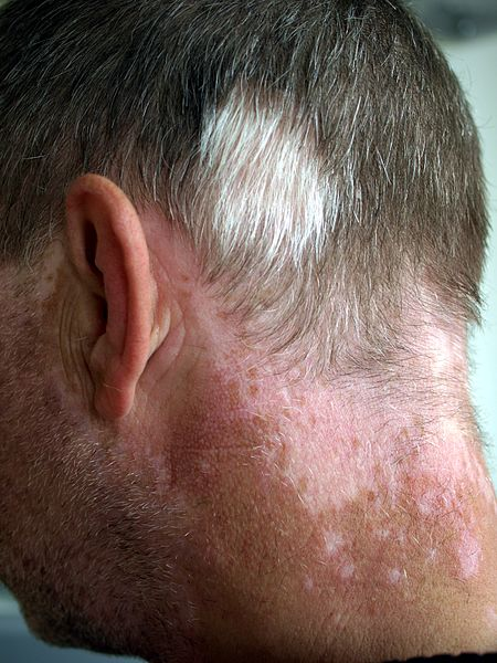 Skin Disorders Physical Therapy Management
