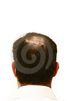 Alopecia on Alopecia Areata Causes Etiology
