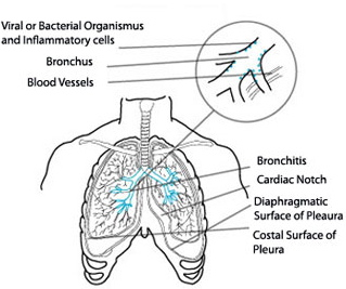 Chronic bronchitis treatment what is chronic bronchitis sciox Image collections