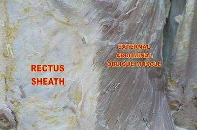rectus abdominis sheath