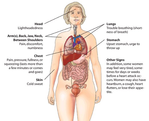 Myocardial Infarction Treatment