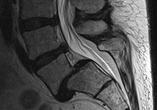physiotherapy treatment of retrolisthesis Engquist m et al found that surgery with physiotherapy resulted in a more rapid improvement  surgery versus nonsurgical treatment of cervical radiculopathy:.