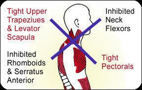 Upper Cross Syndrome